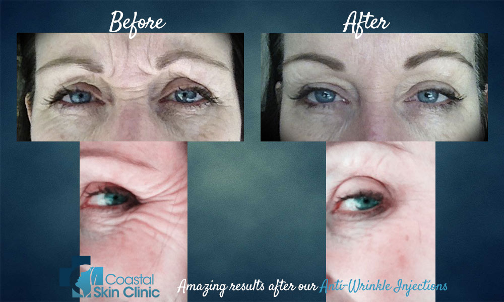 anti wrinkle injection wrinkle filler sunshine coast