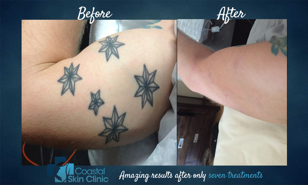 tattoo removal before and after seven treatments sunshine coast