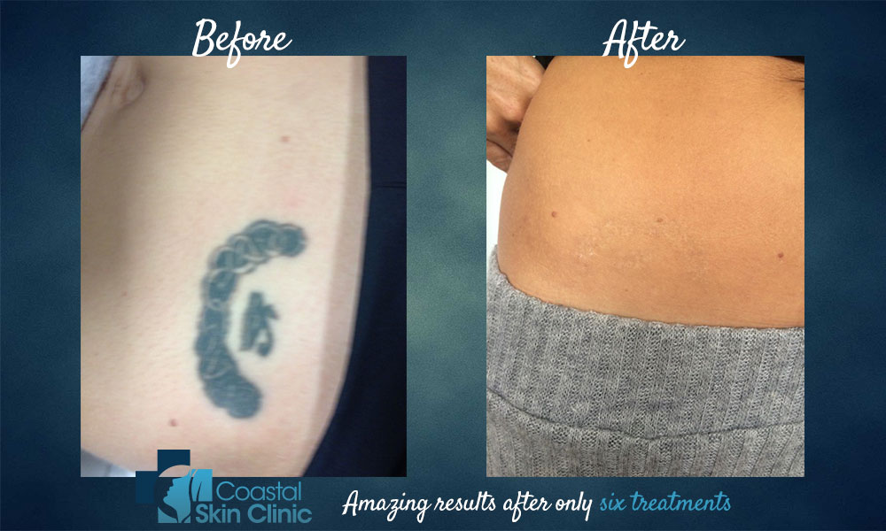 tattoo removal before and after six treatments sunshine coast